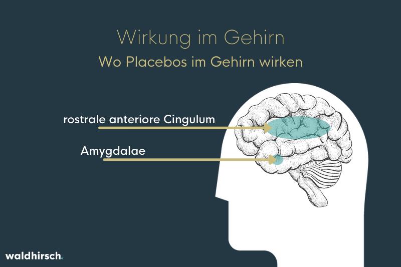 Grafik zur Wirkung von Placebos im Gehirn